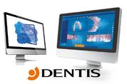 덴티스, 투명교정 셋업SW 'FDA 최종 승인'