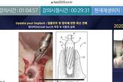 """임플란트 최신 술식, 기구, 골이식에 """"쏠린 눈"""""""